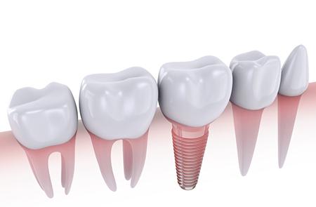 Erfahrung implantat zahn Implantatgetragene Verbundbrücke